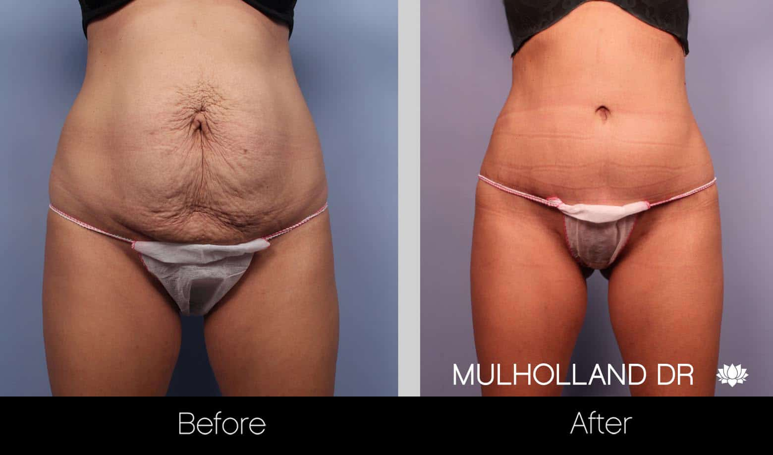Tummy Tuck -Before and After Gallery - Patient Photo 22
