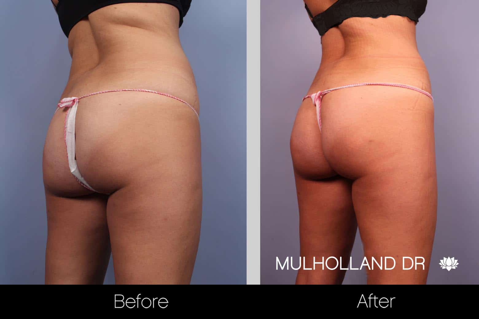 Tummy Tuck -Before and After Gallery - Patient Photo 23