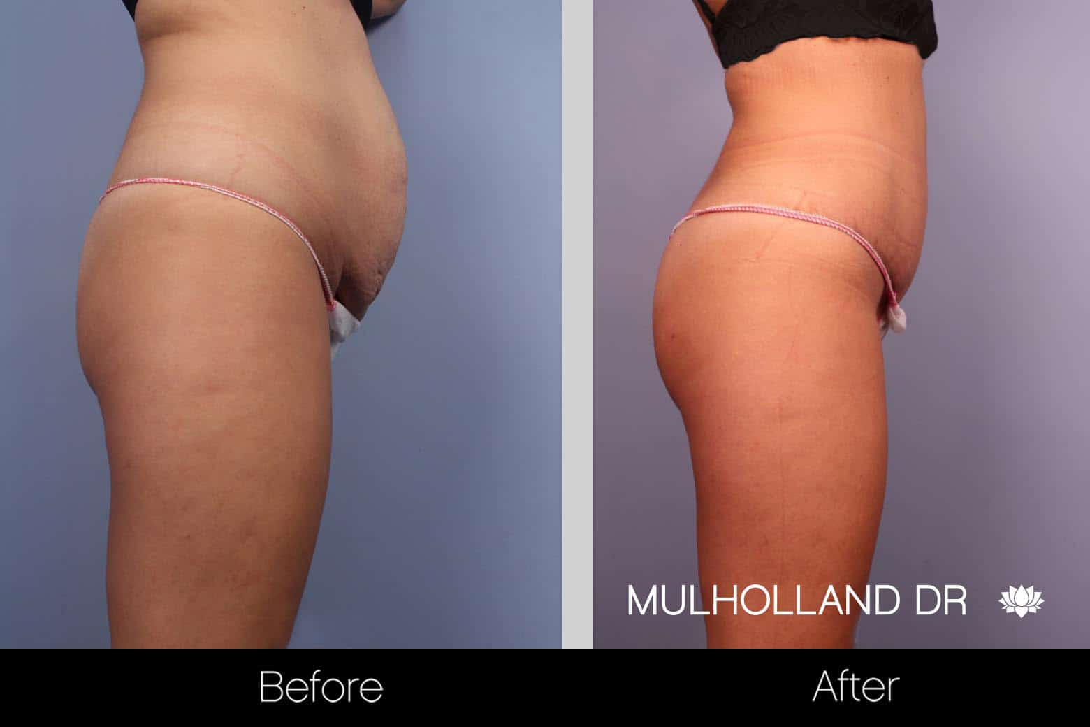Tummy Tuck -Before and After Gallery - Patient Photo 24