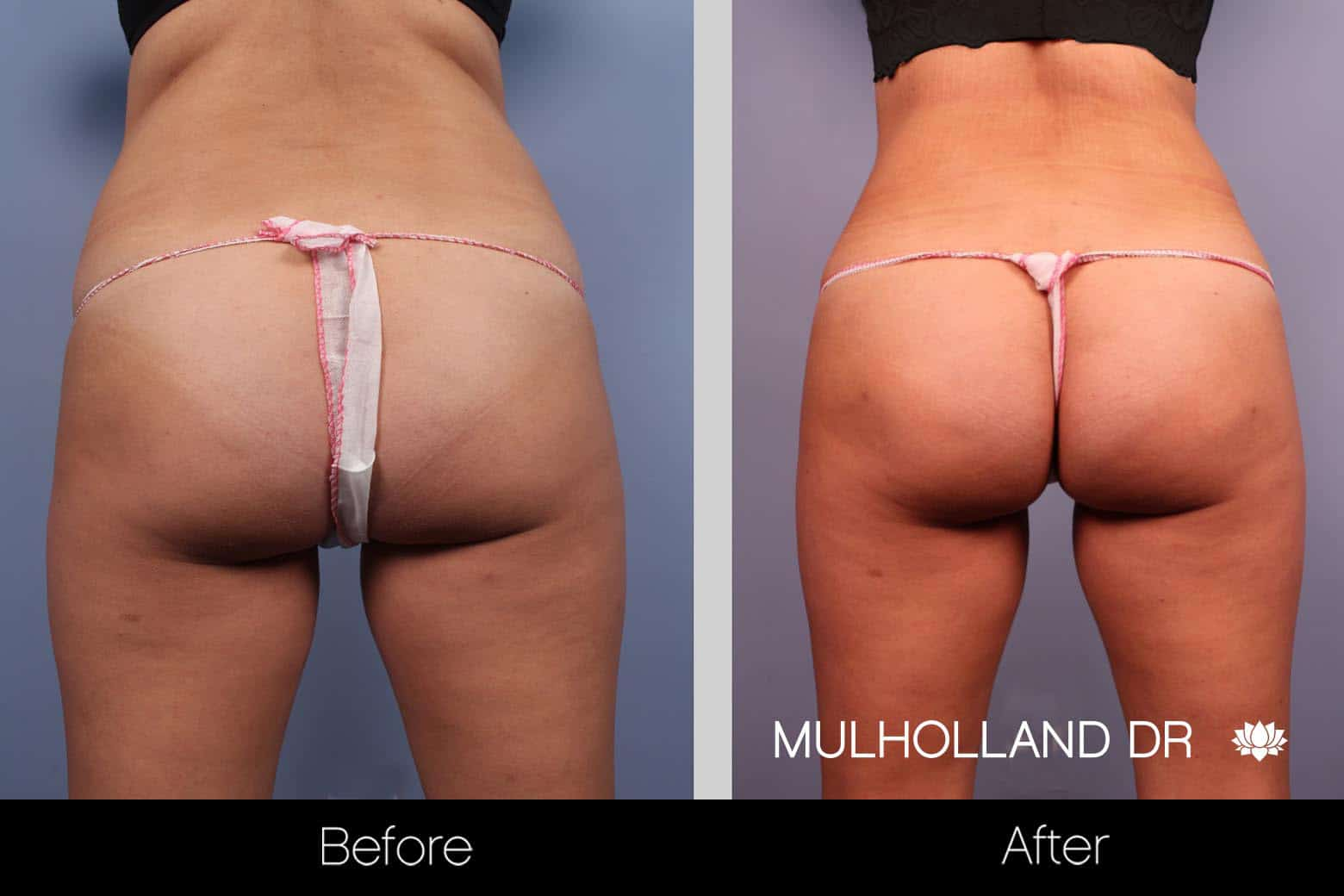 Tummy Tuck -Before and After Gallery - Patient Photo 25