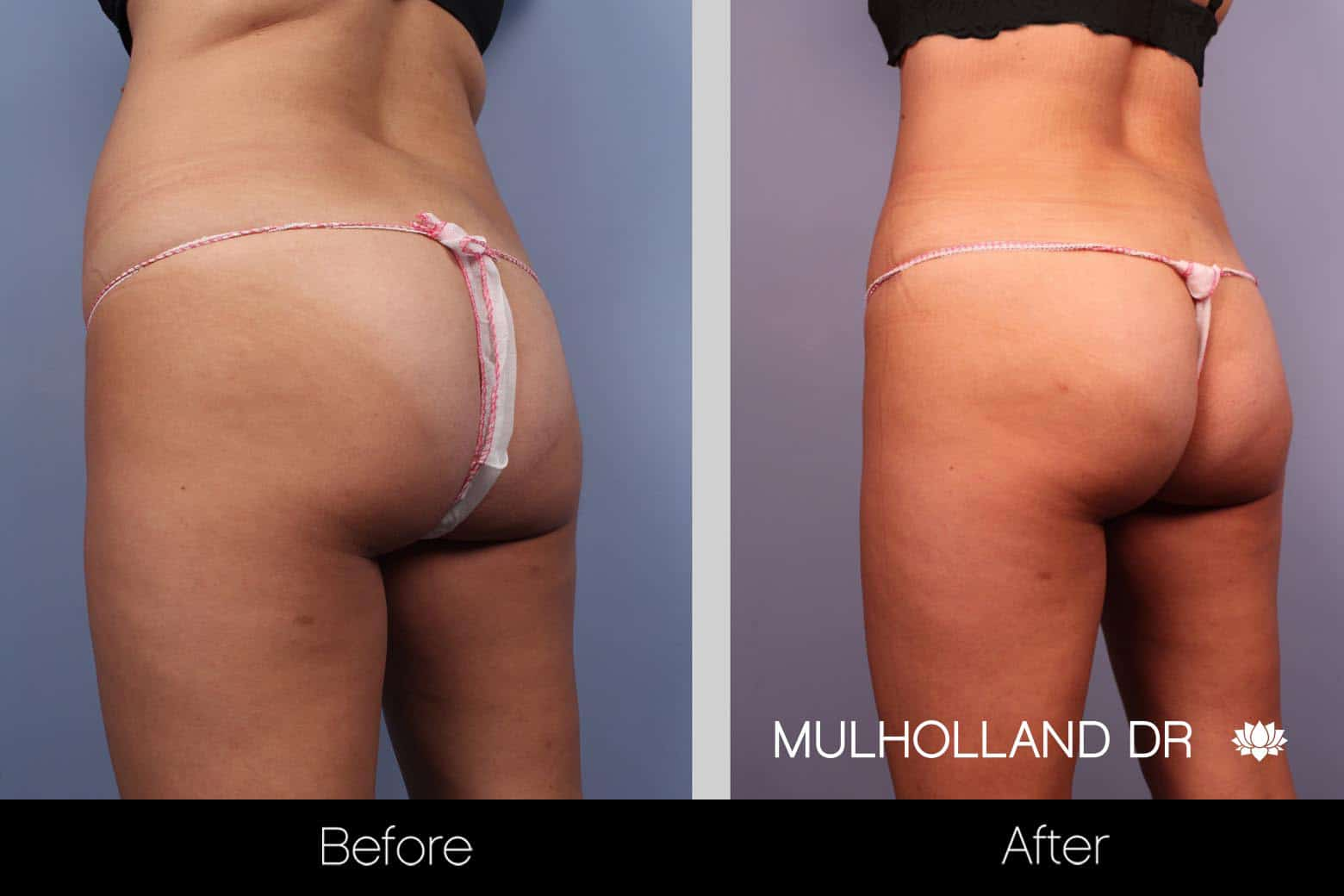 Tummy Tuck -Before and After Gallery - Patient Photo 26