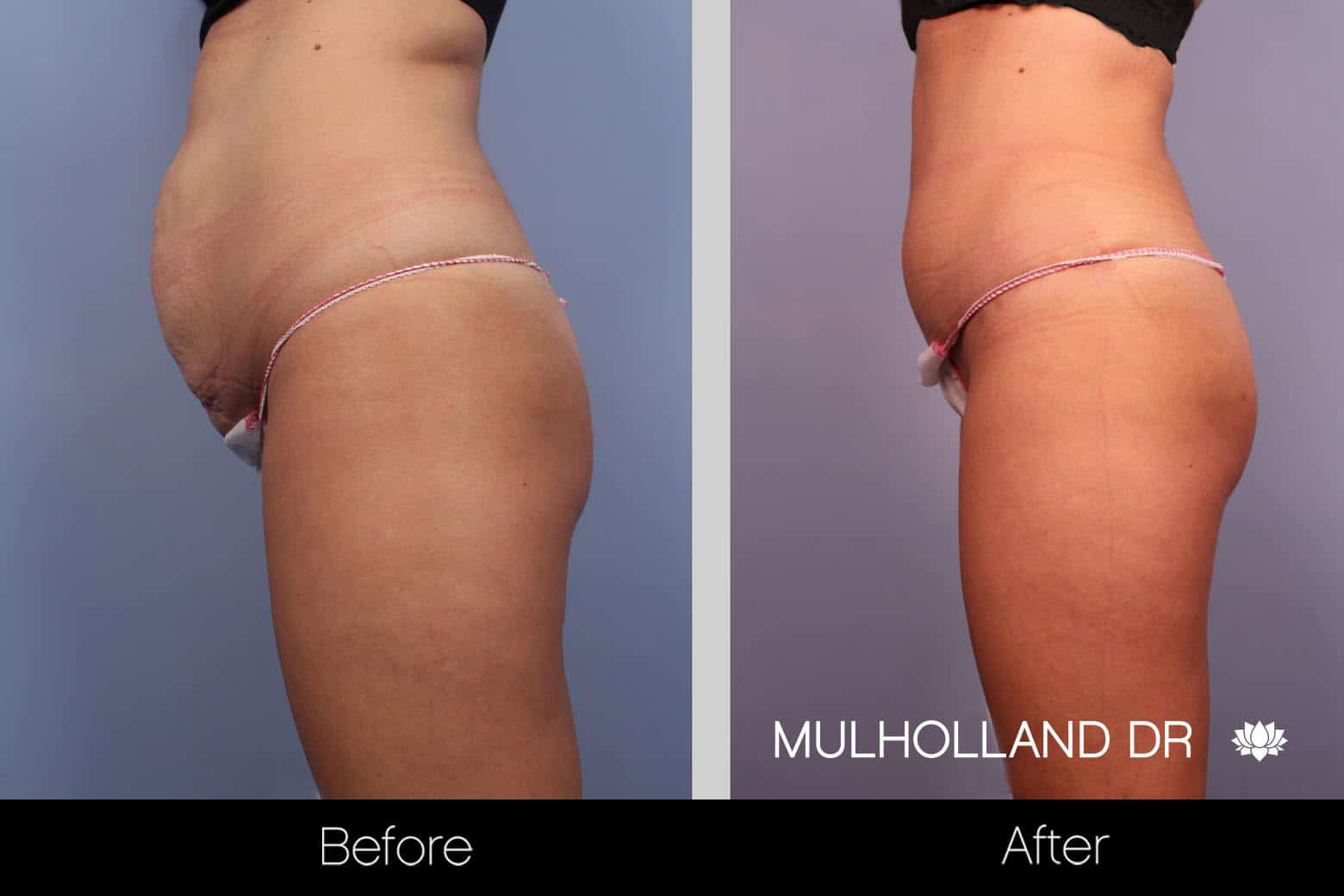 Tummy Tuck -Before and After Gallery - Patient Photo 27