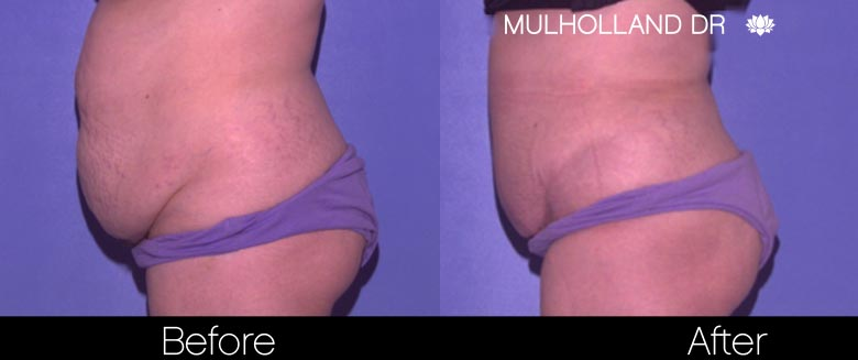 Tummy Tuck -Before and After Gallery - Patient Photo 28