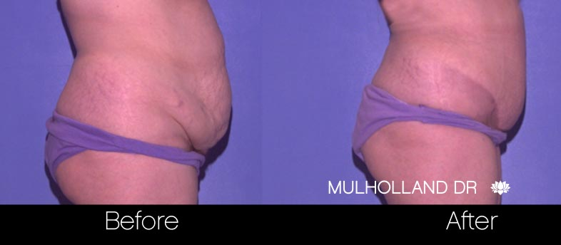 Tummy Tuck -Before and After Gallery - Patient Photo 29