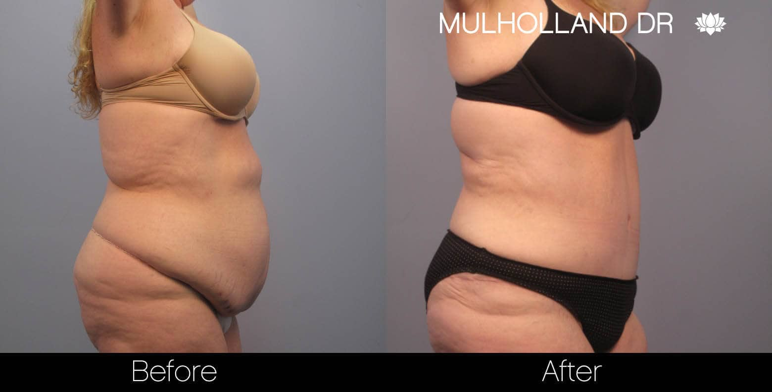 Tummy Tuck -Before and After Gallery - Patient Photo 3