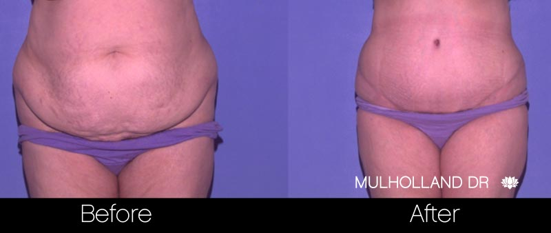 Tummy Tuck -Before and After Gallery - Patient Photo 30