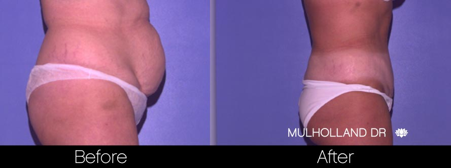 Tummy Tuck -Before and After Gallery - Patient Photo 31