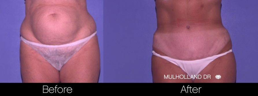 Tummy Tuck -Before and After Gallery - Patient Photo 32
