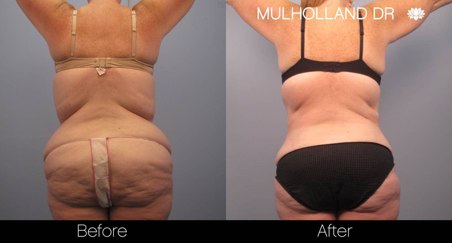 Tummy Tuck -Before and After Gallery - Patient Photo 4
