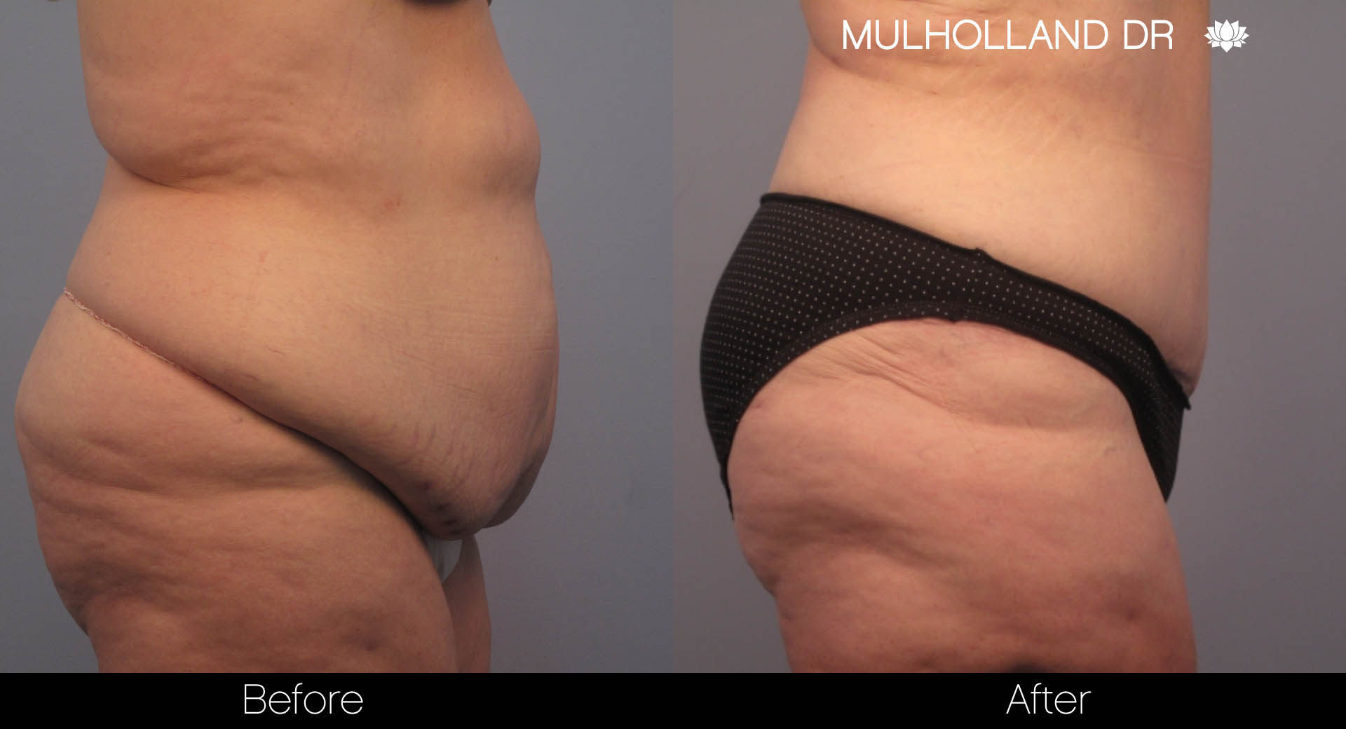Tummy Tuck -Before and After Gallery - Patient Photo 5