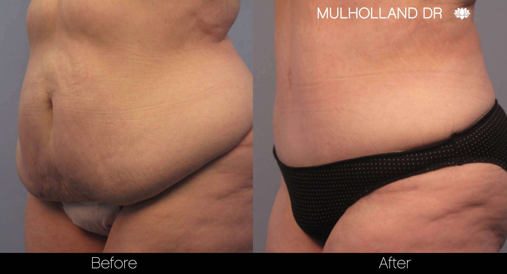 Tummy Tuck -Before and After Gallery - Patient Photo 6