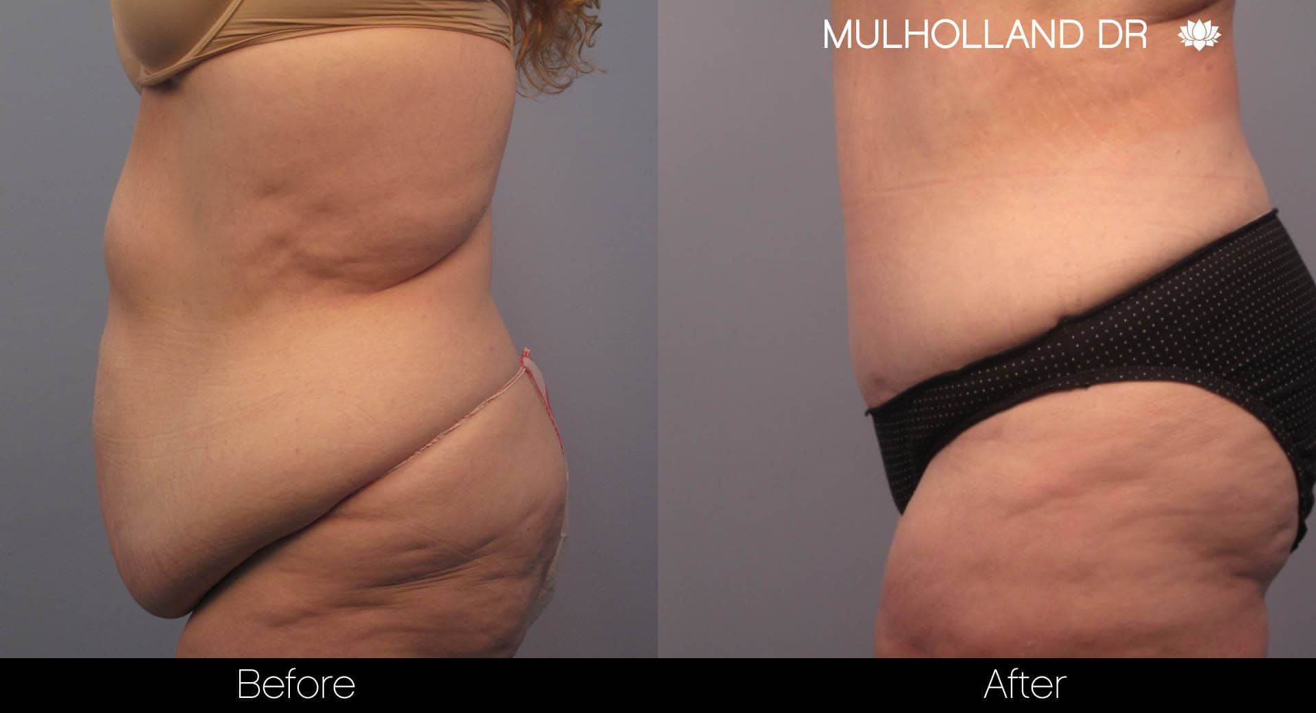Tummy Tuck -Before and After Gallery - Patient Photo 7