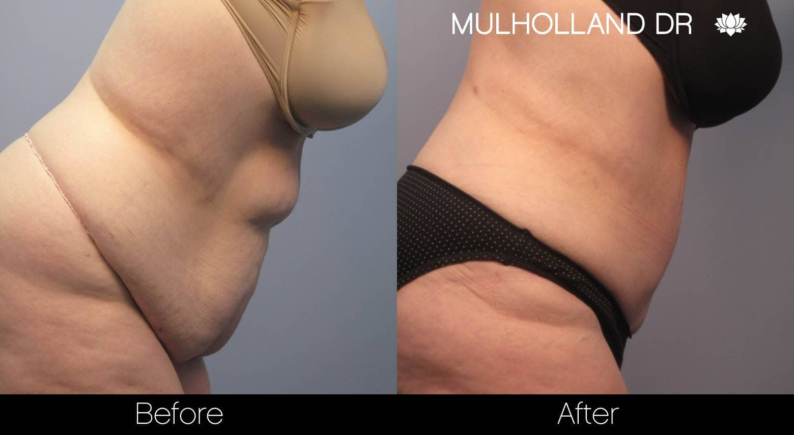 Tummy Tuck -Before and After Gallery - Patient Photo 8