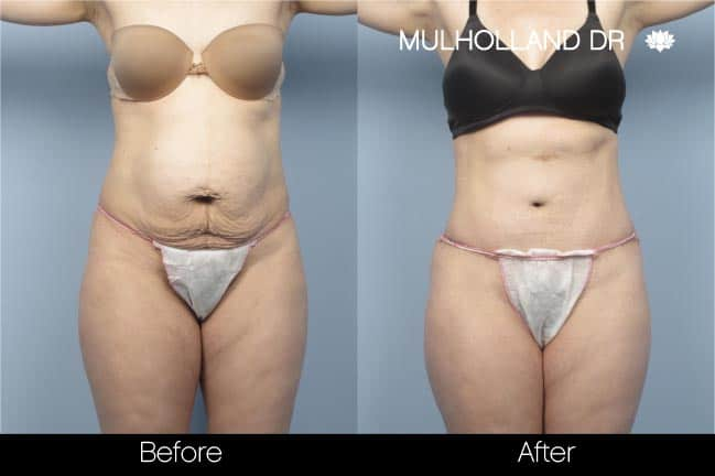 Tummy Tuck -Before and After Gallery - Patient Photo 9