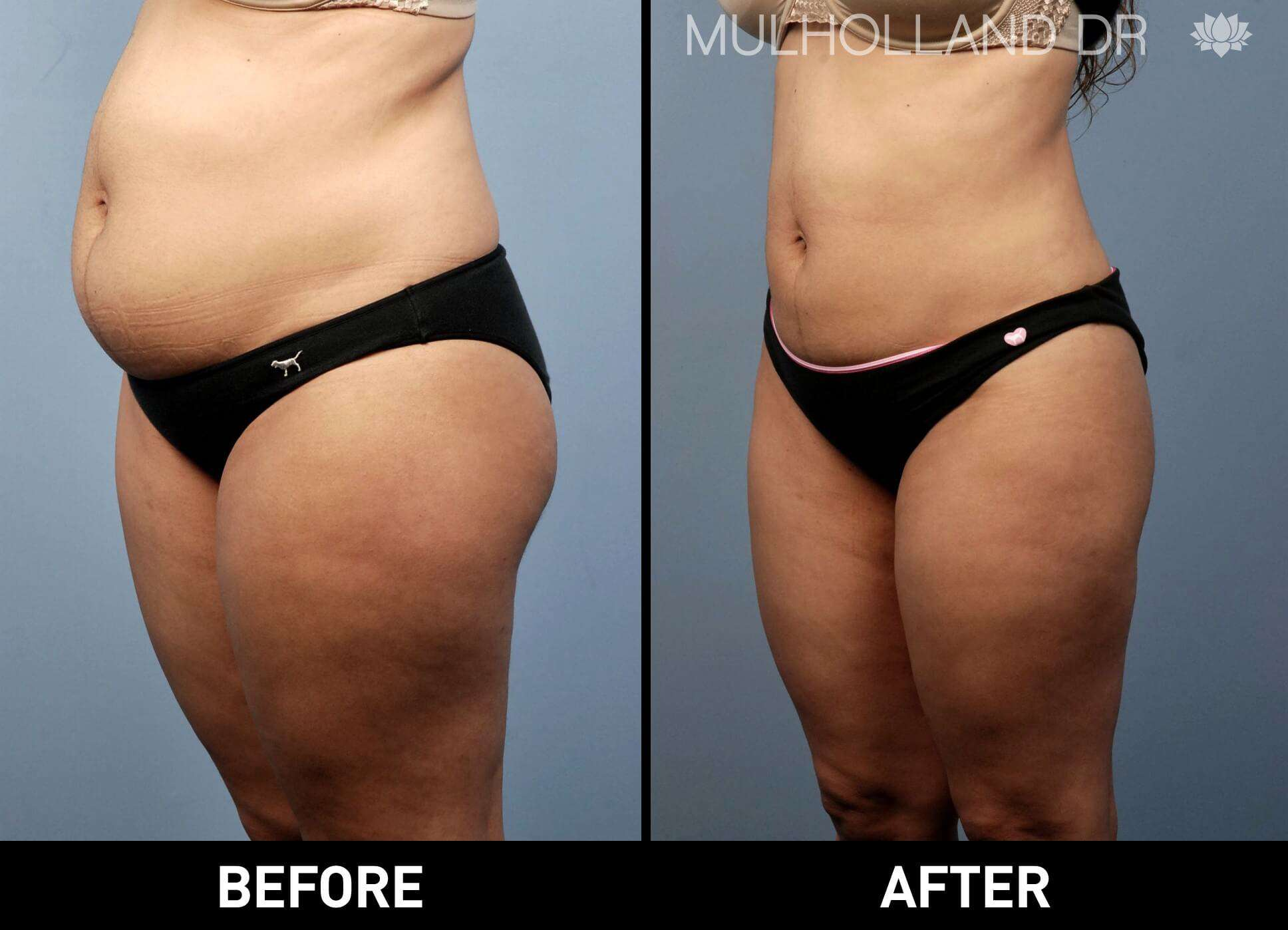 Vaser Liposuction - Before and After Gallery - Patient Photo 1