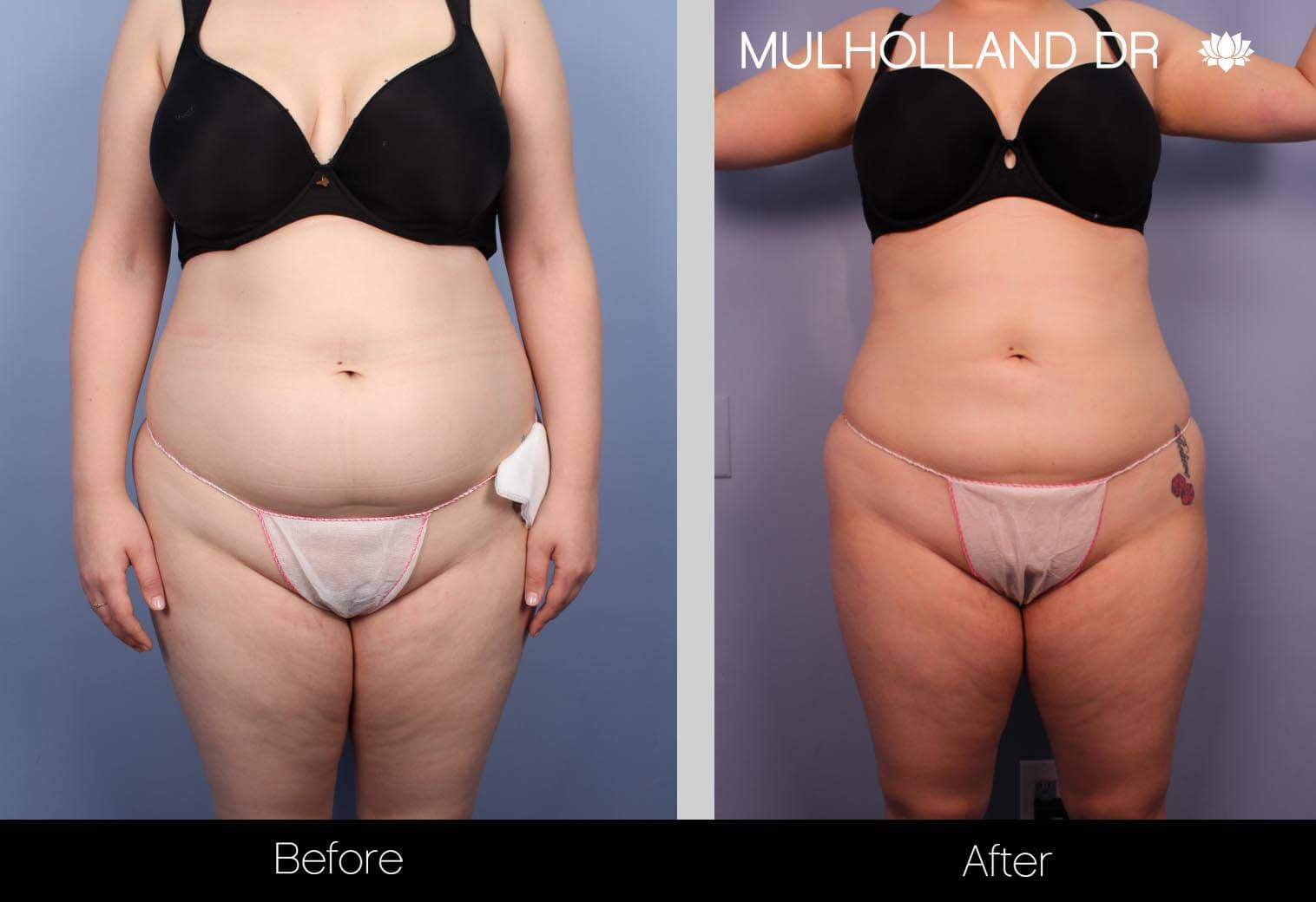 Vaser Liposuction - Before and After Gallery - Patient Photo 10