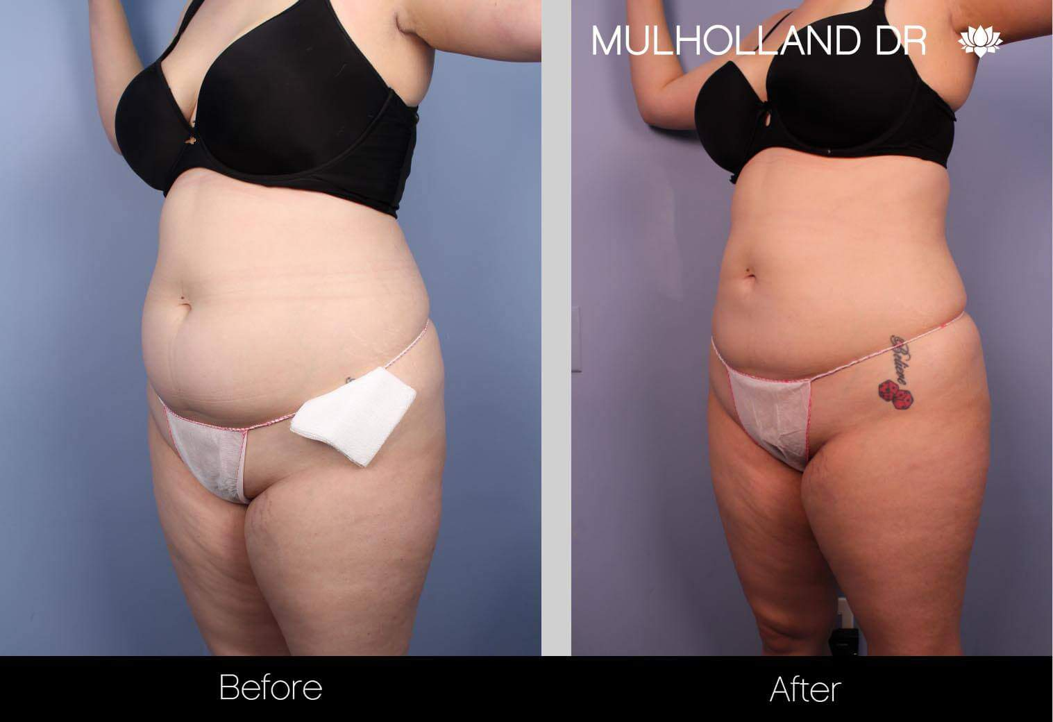 Vaser Liposuction - Before and After Gallery - Patient Photo 11