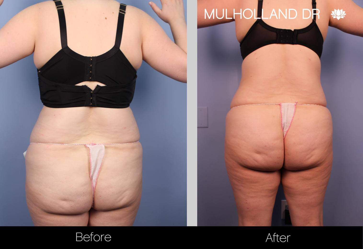 Vaser Liposuction - Before and After Gallery - Patient Photo 14