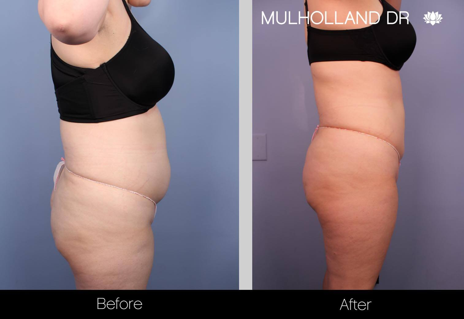 Vaser Liposuction - Before and After Gallery - Patient Photo 16