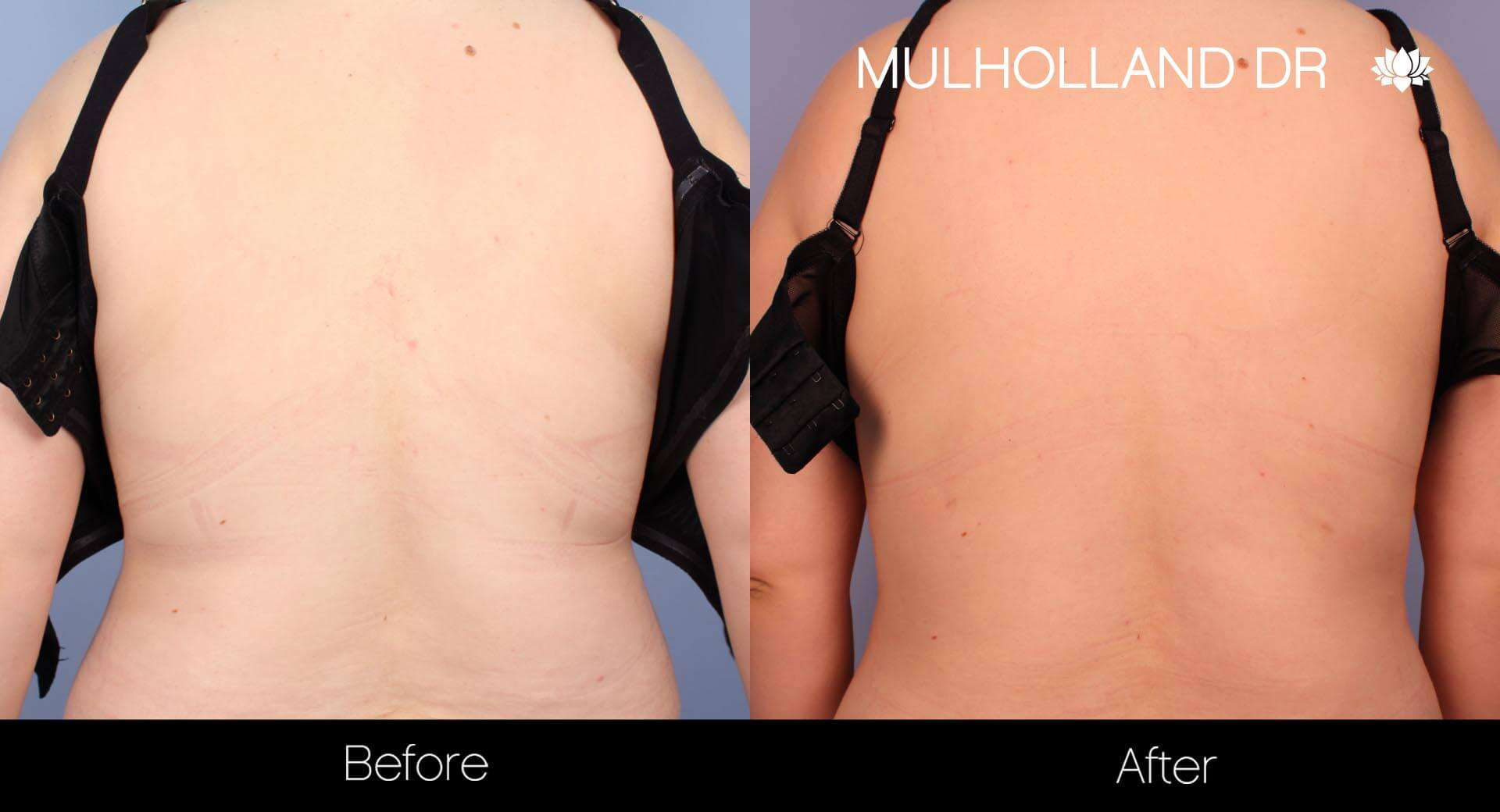Vaser Liposuction - Before and After Gallery - Patient Photo 19