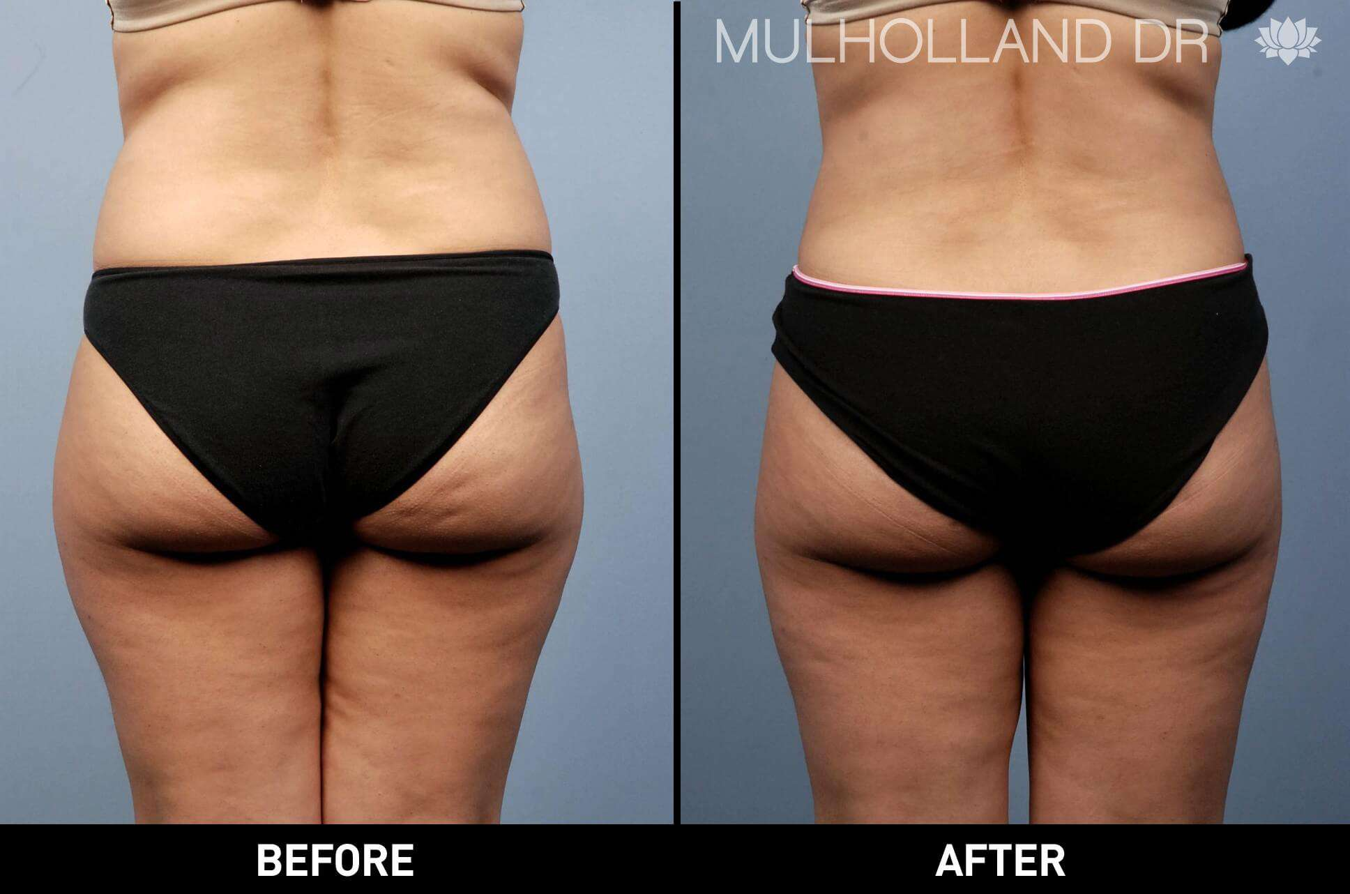 Vaser Liposuction - Before and After Gallery - Patient Photo 2