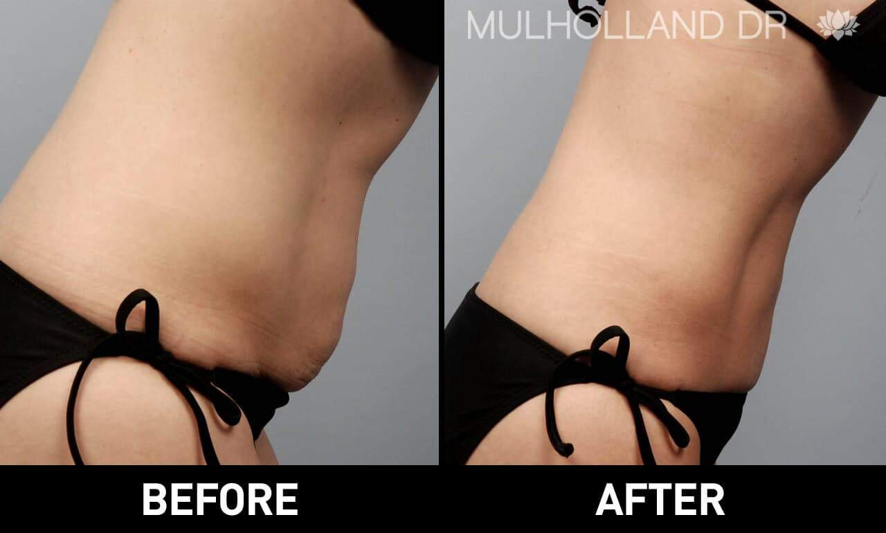 Vaser Liposuction - Before and After Gallery - Patient Photo 22
