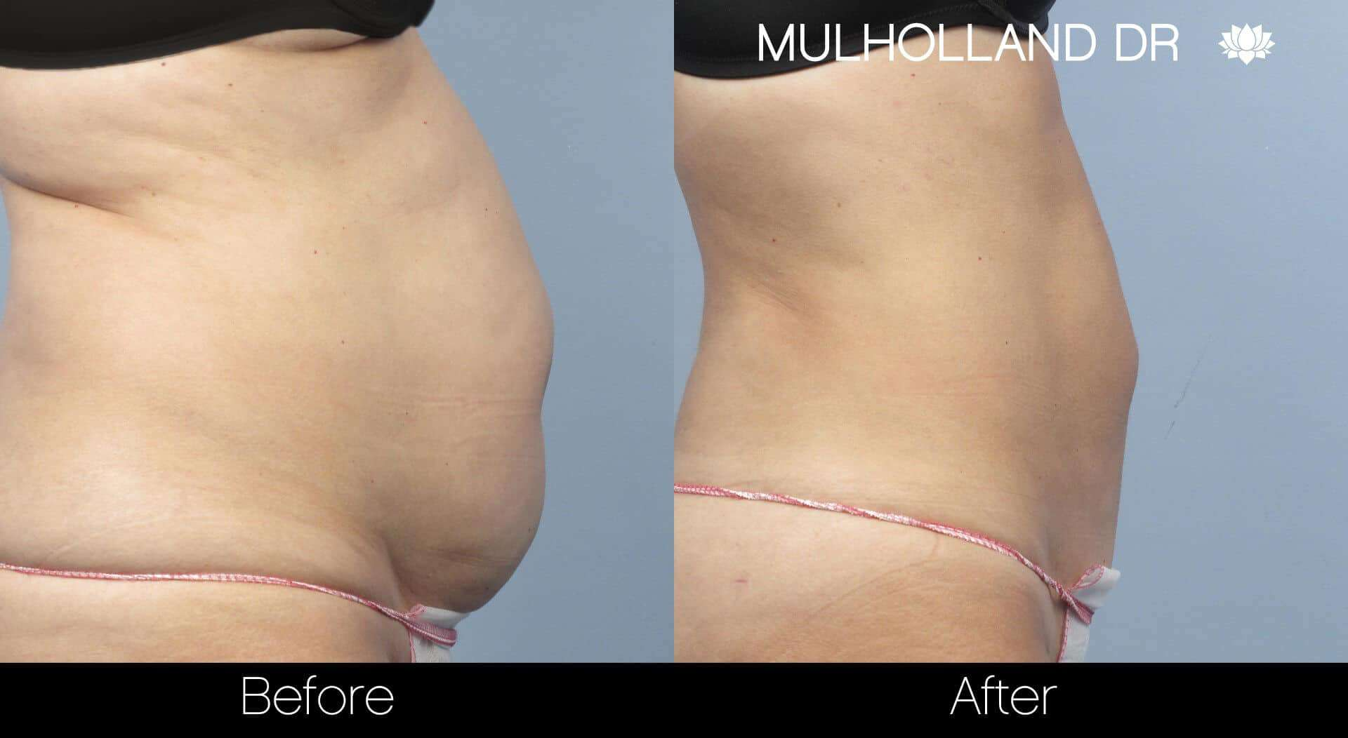 Vaser Liposuction - Before and After Gallery - Patient Photo 24
