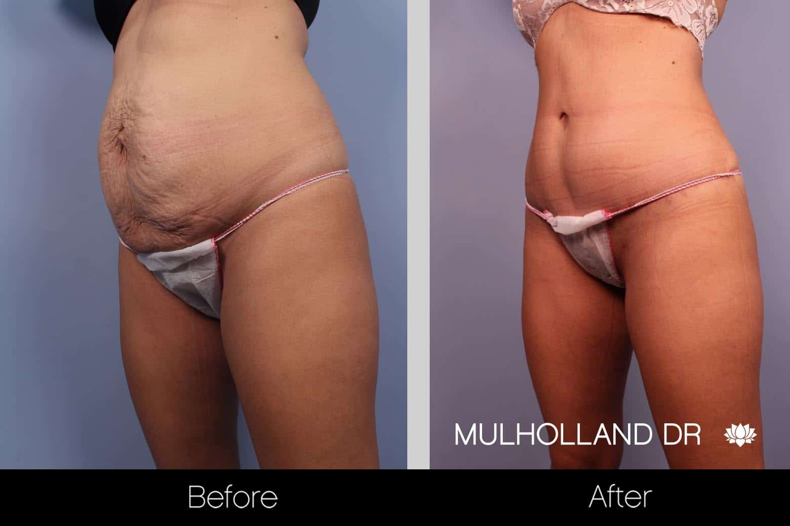 Vaser Liposuction - Before and After Gallery - Patient Photo 27