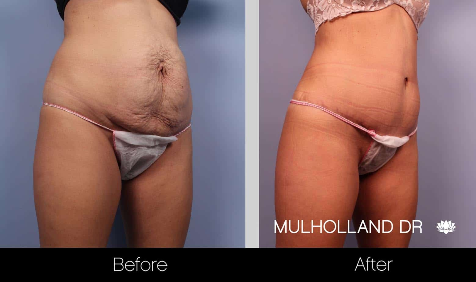 Vaser Liposuction - Before and After Gallery - Patient Photo 29