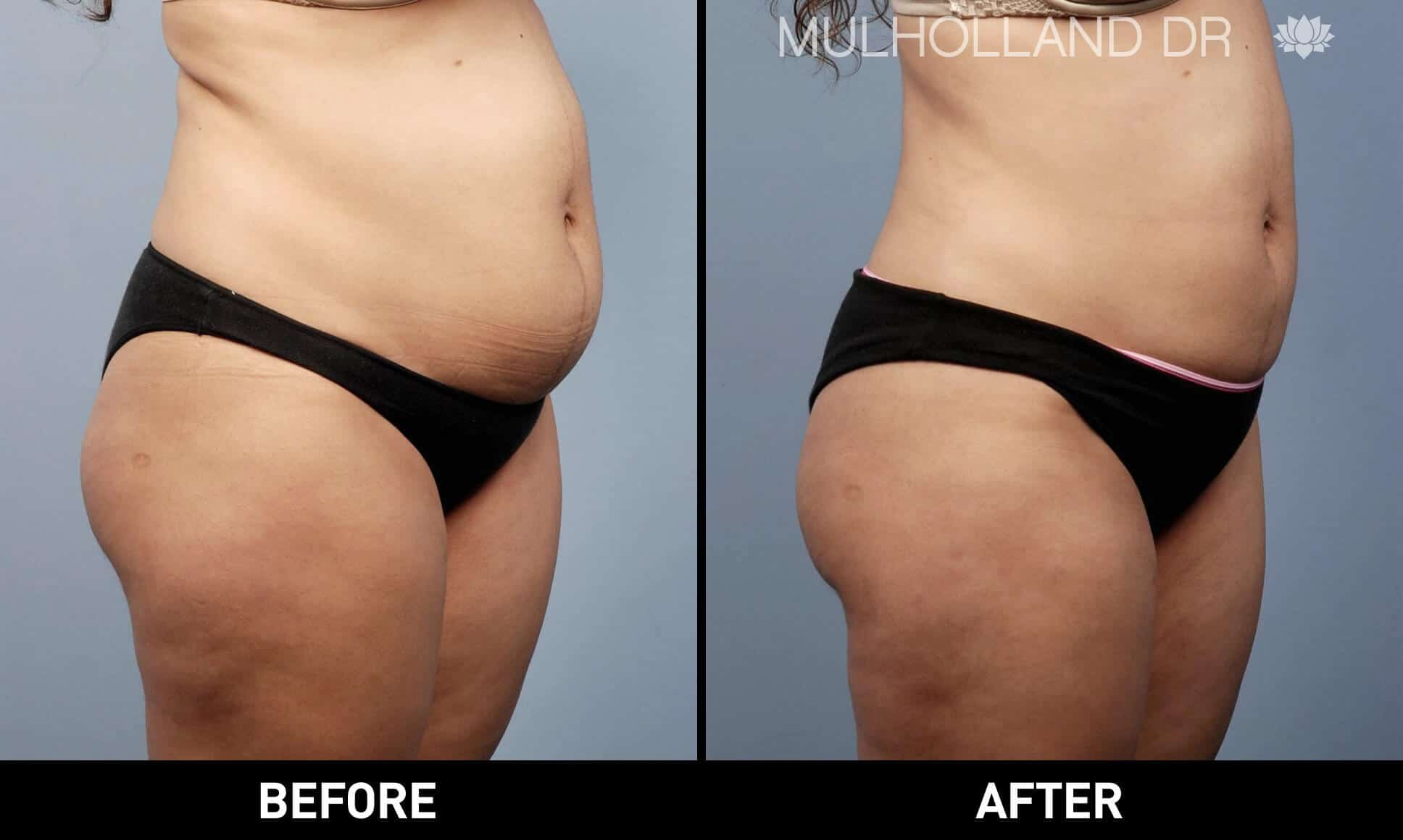Vaser Liposuction - Before and After Gallery - Patient Photo 3