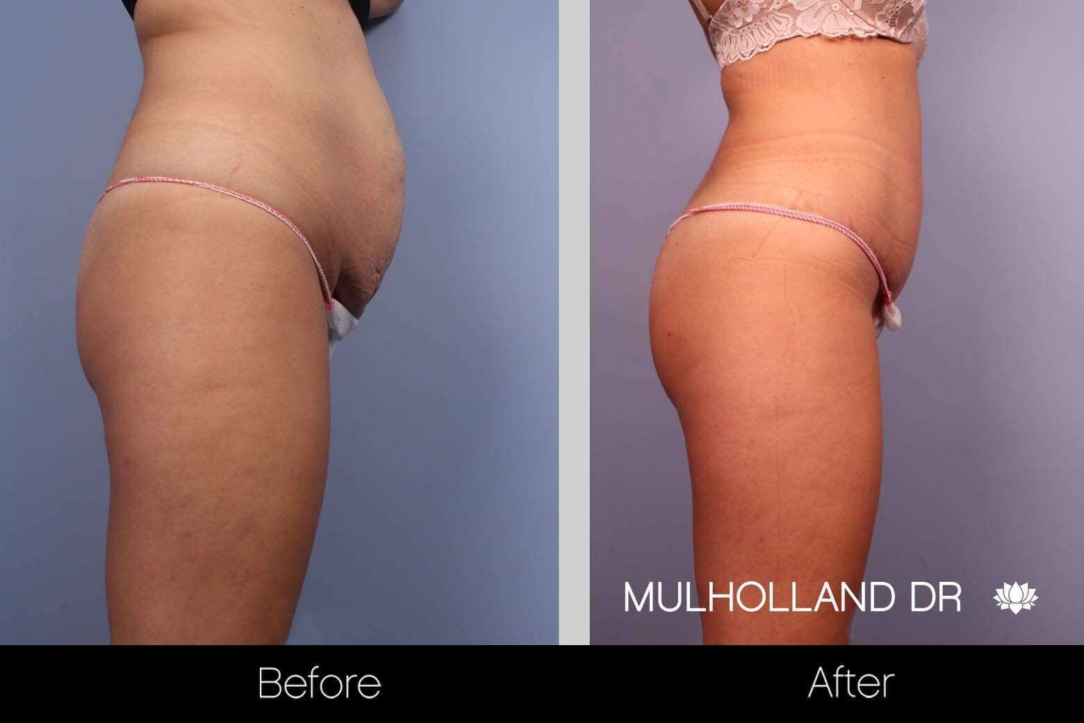 Vaser Liposuction - Before and After Gallery - Patient Photo 30
