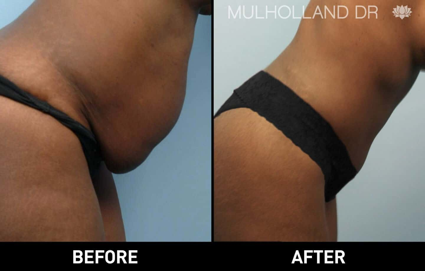 Vaser Liposuction - Before and After Gallery - Patient Photo 31