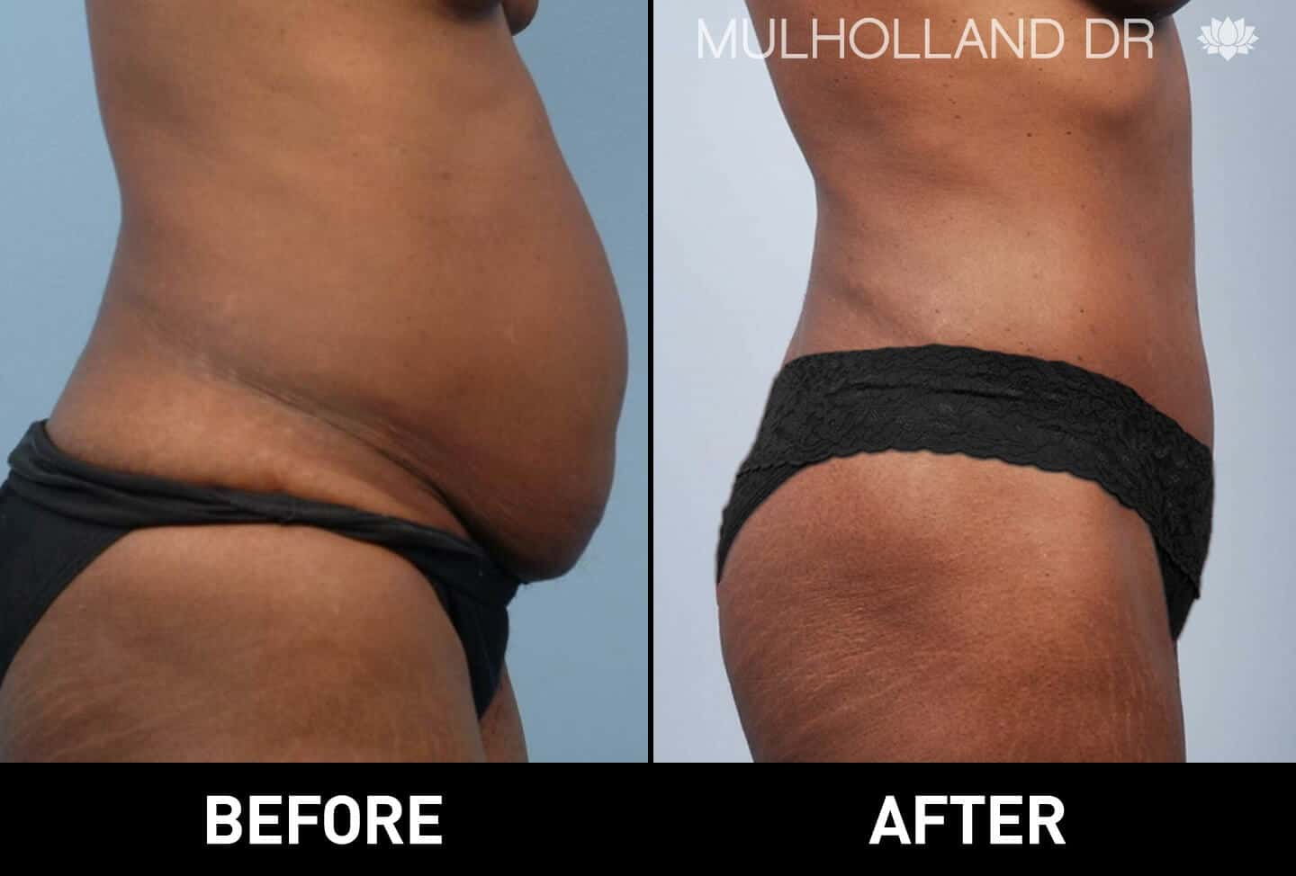 Vaser Liposuction - Before and After Gallery - Patient Photo 32