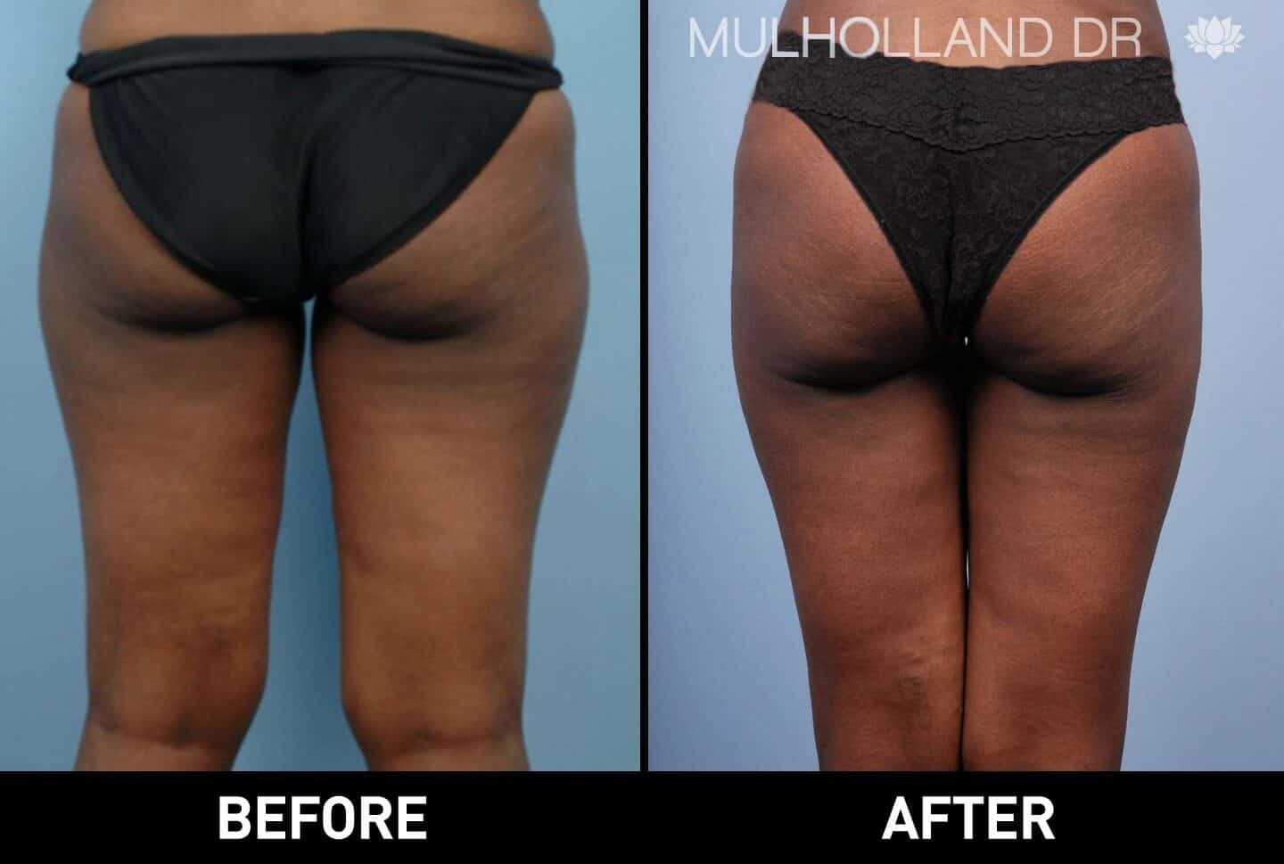 Vaser Liposuction - Before and After Gallery - Patient Photo 33