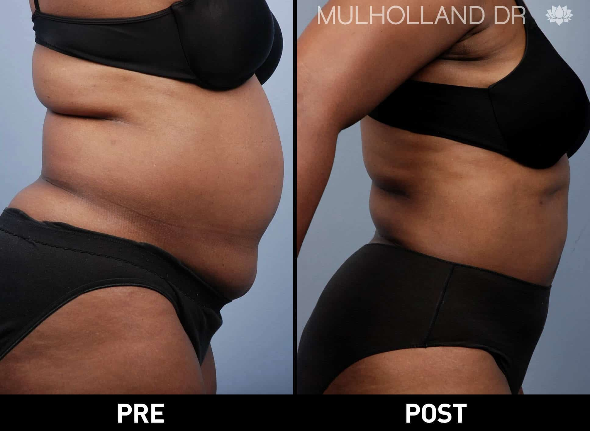 Vaser Liposuction - Before and After Gallery - Patient Photo 35