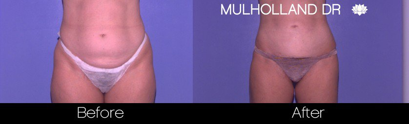 Vaser Liposuction - Before and After Gallery - Patient Photo 36