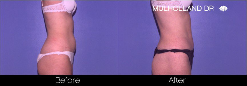 Vaser Liposuction - Before and After Gallery - Patient Photo 38