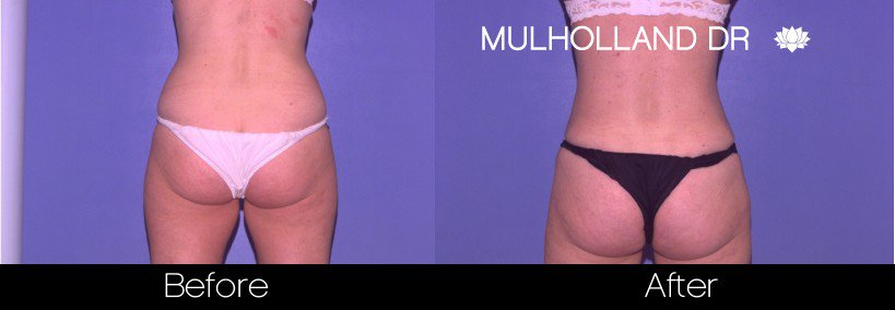 Vaser Liposuction - Before and After Gallery - Patient Photo 41