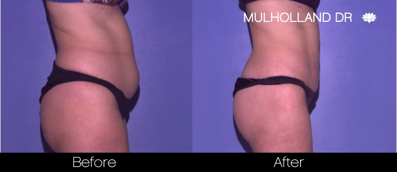 Vaser Liposuction - Before and After Gallery - Patient Photo 42