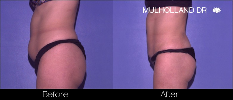 Vaser Liposuction - Before and After Gallery - Patient Photo 43