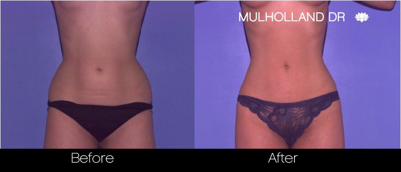 Vaser Liposuction - Before and After Gallery - Patient Photo 44