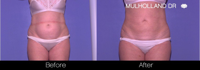 Vaser Liposuction - Before and After Gallery - Patient Photo 46