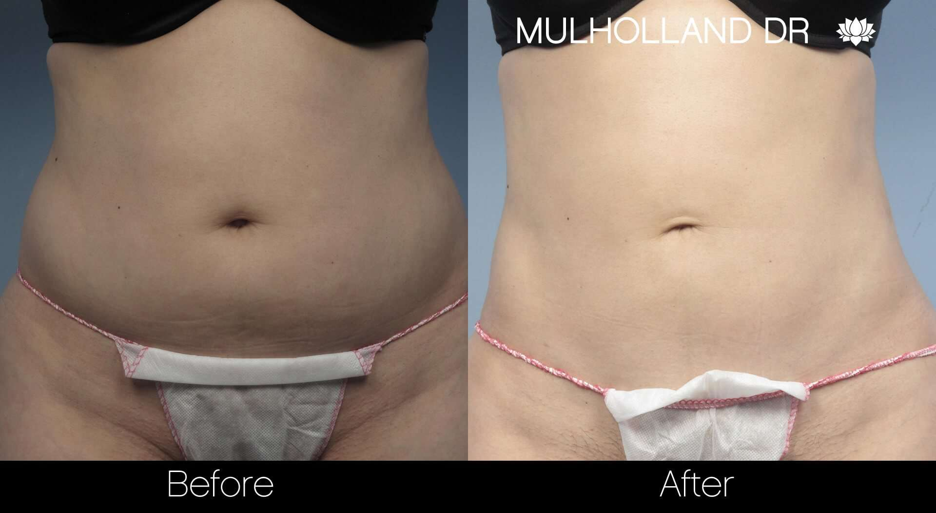 Vaser Liposuction - Before and After Gallery - Patient Photo 5