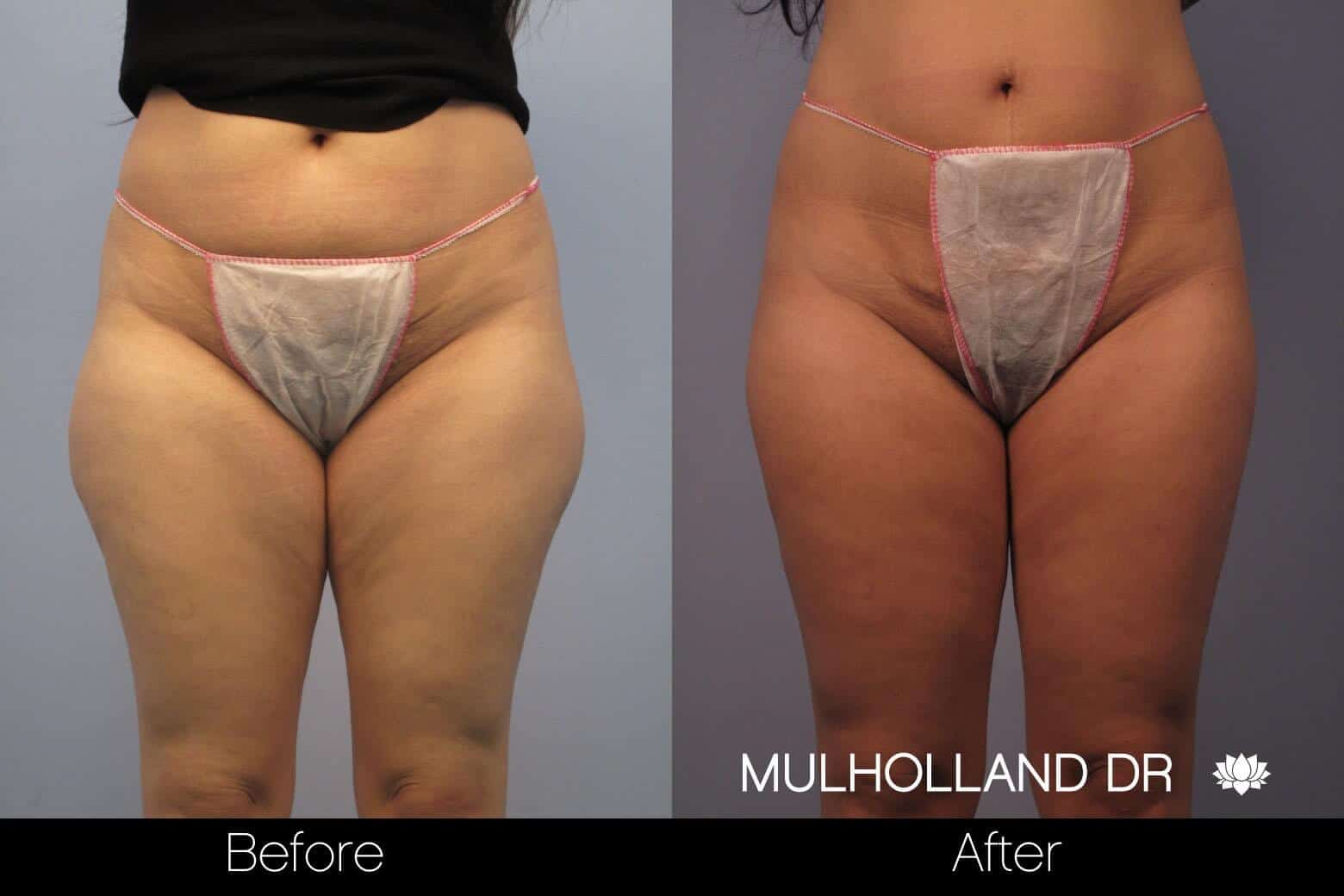 Vaser Liposuction - Before and After Gallery - Patient Photo 50