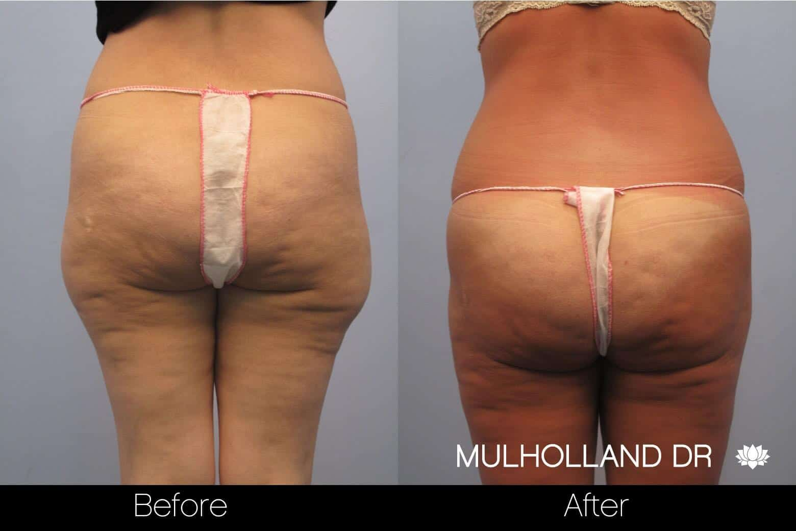 Vaser Liposuction - Before and After Gallery - Patient Photo 51