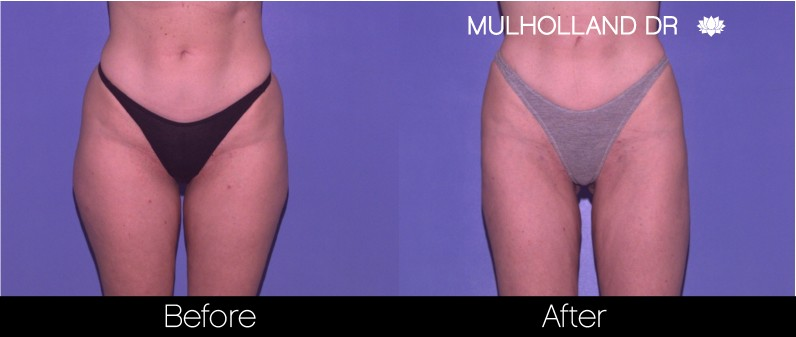 Vaser Liposuction - Before and After Gallery - Patient Photo 54
