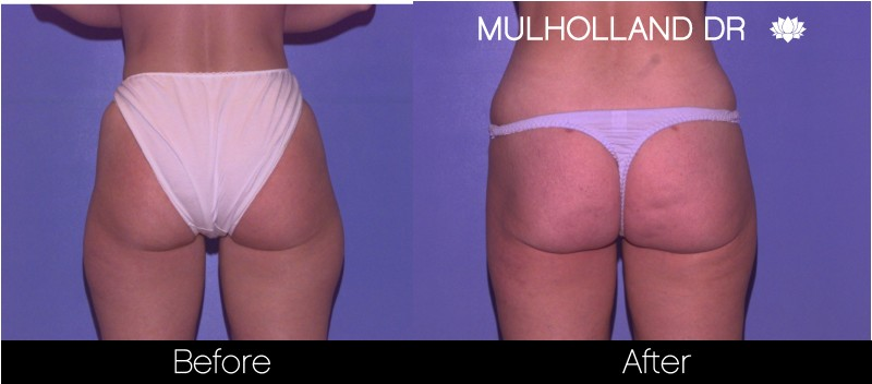 Vaser Liposuction - Before and After Gallery - Patient Photo 56