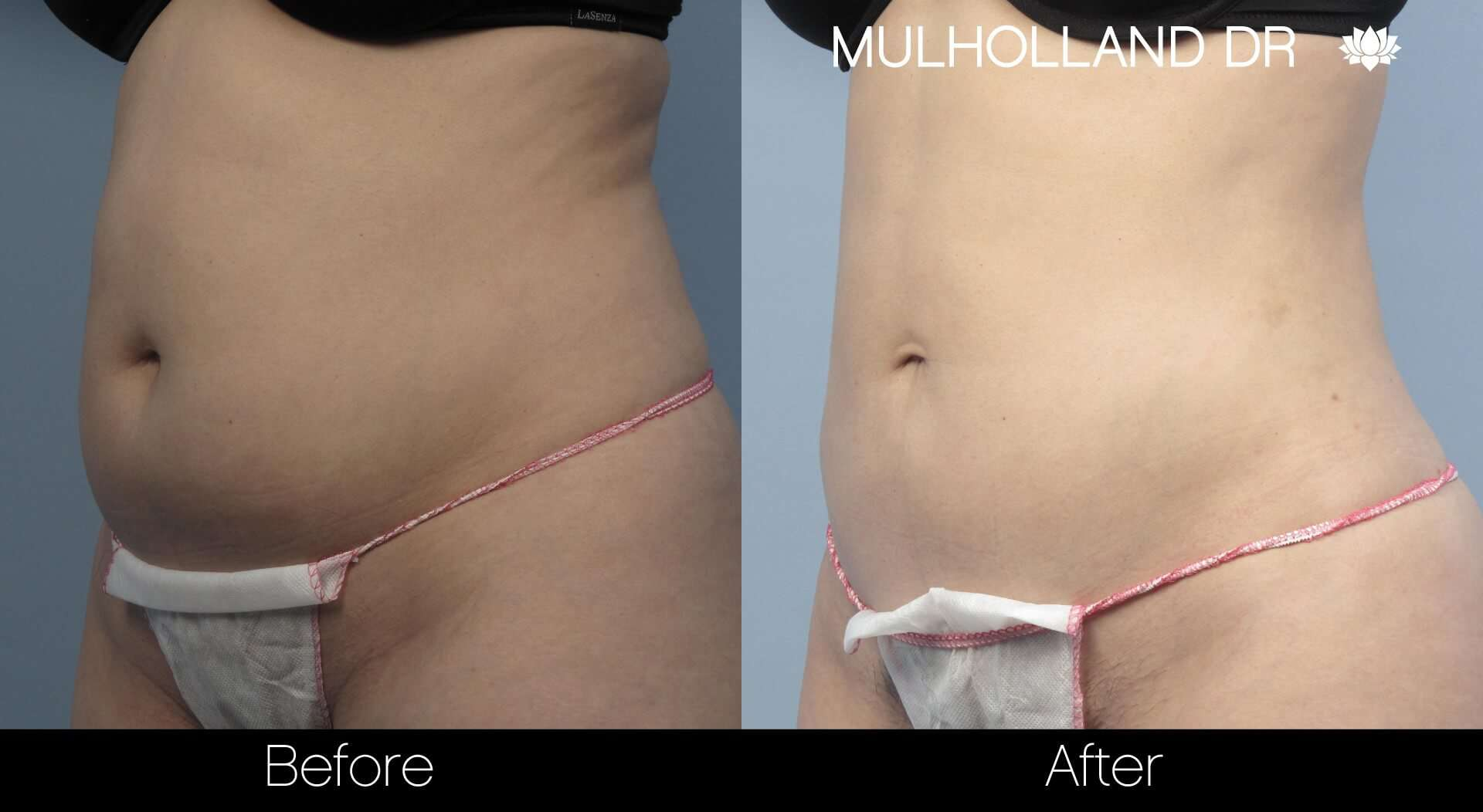 Vaser Liposuction - Before and After Gallery - Patient Photo 6