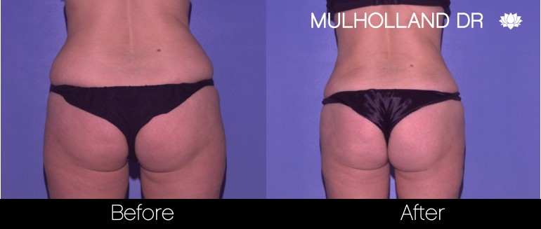 Vaser Liposuction - Before and After Gallery - Patient Photo 60