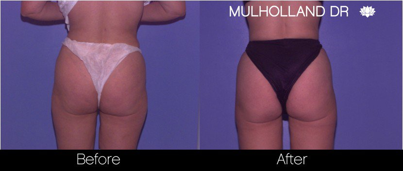 Vaser Liposuction - Before and After Gallery - Patient Photo 62